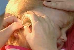 Как выглядит ухо у ребенка
