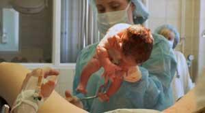 трудности при рождении