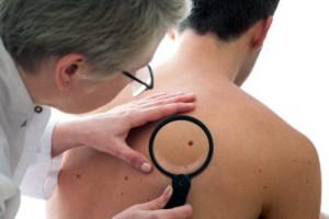 родинки, рак кожи, онкология
