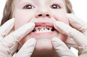 кариес, стоматология